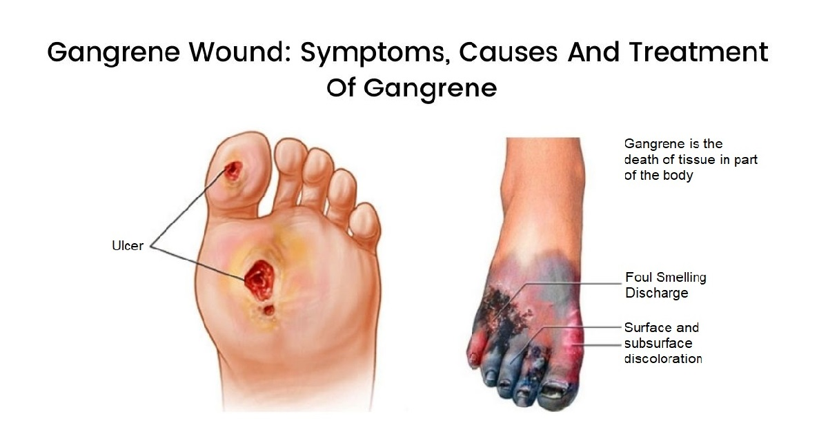 What Is Gangrene And How It Gets Treated?
